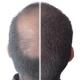 Kmax Zagęszczanie Włosów Mikrowłókna do Włosów 5g